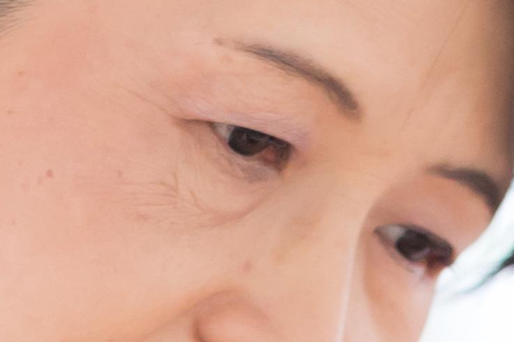 目の下のたるみに悩む女性