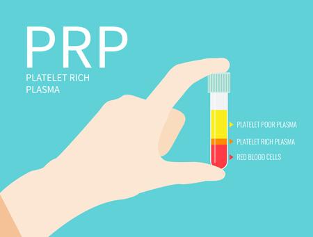 PRP療法の画像