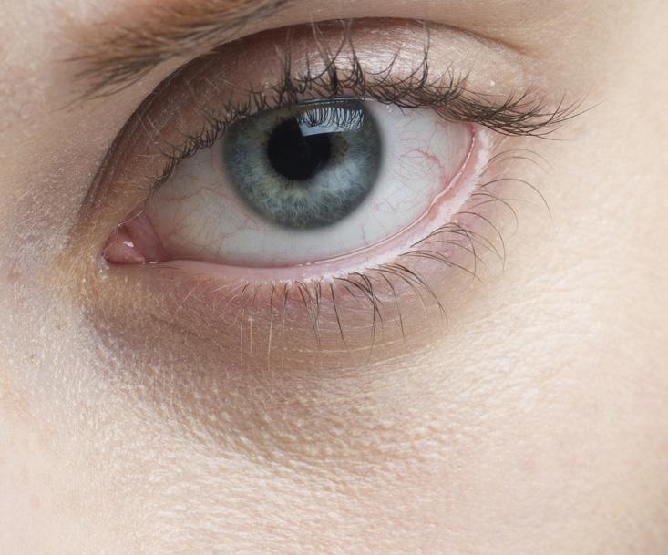 目の下のくまの画像
