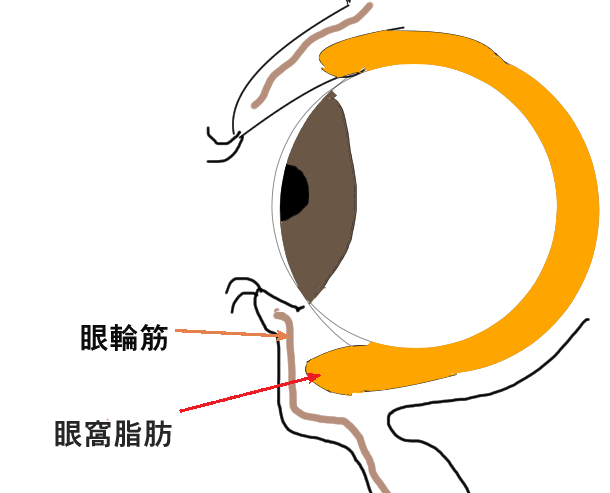 眼窩脂肪ヘルニアの説明画像
