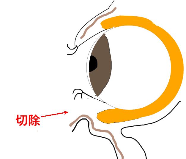 目の下のたるみの施術の説明図2