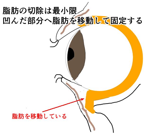 ハムラ法の説明画像
