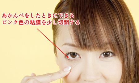 眼窩脂肪ヘルニアの経結膜下脱脂法の説明画像