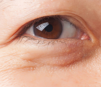 中程度の目の下のたるみの画像