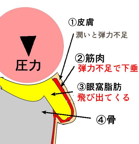 目の下のたるみの原因の図解
