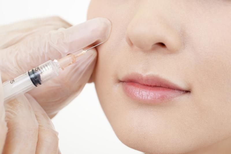 ほうれい線のヒアルロン酸注入を受けている女性の画像