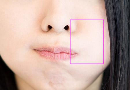 ほうれい線部分の綺麗な皮膚の画像