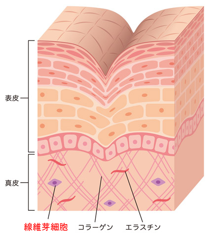 シワの断面図の画像