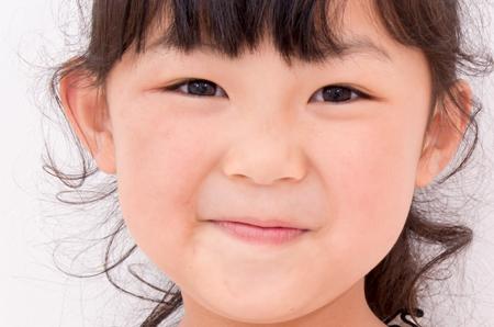 小さな子供のほうれいの溝の画像