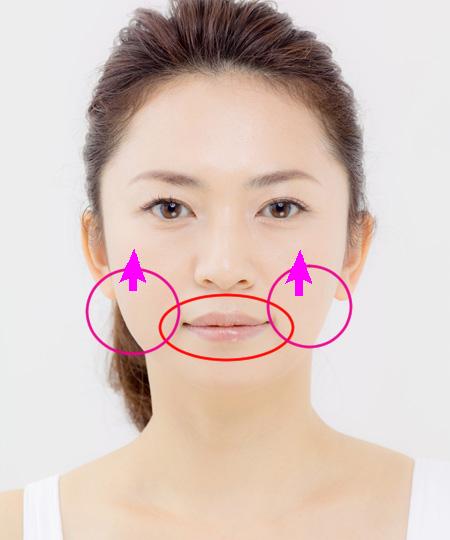 頬上げの解説図