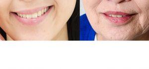ほうれい線の年齢による違いの画像