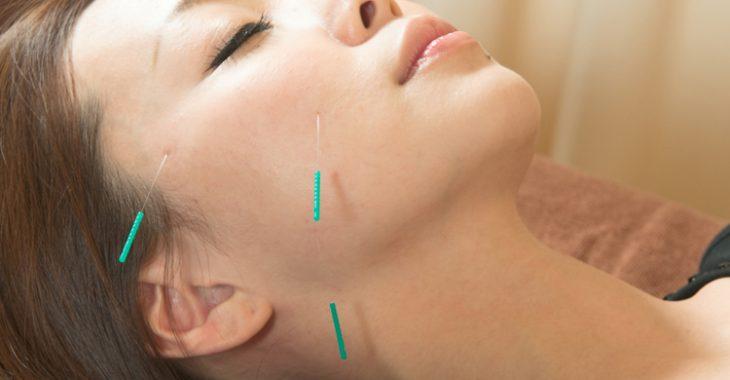 美容鍼(美顔鍼)の施術を受ける女性の画像