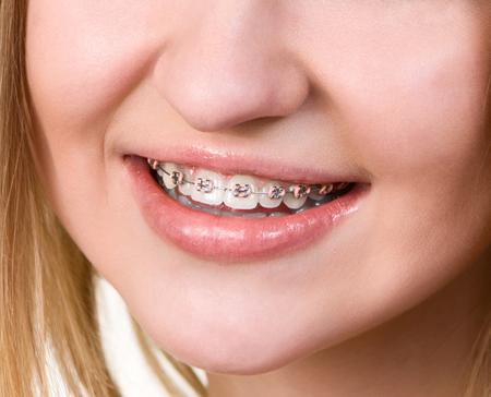 歯科矯正中の女性の画像