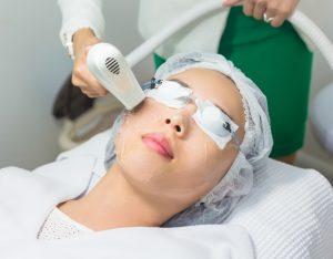 ほうれい線のレーザー治療を受ける女性の画像