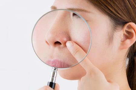 BNLS注射をする位置の画像