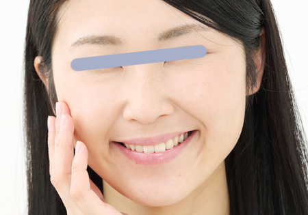 乾燥肌が原因のほうれい線の画像