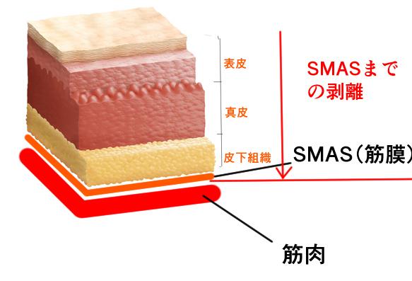 SMAS(スマス)リフトの概説画像