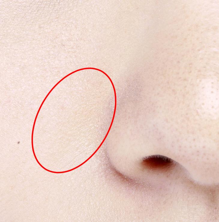 たるみ毛穴でない皮膚の画像