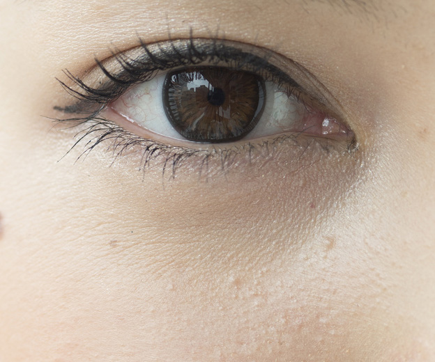 目の下のシワの画像