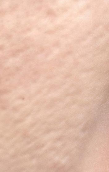 毛穴のたるみの画像