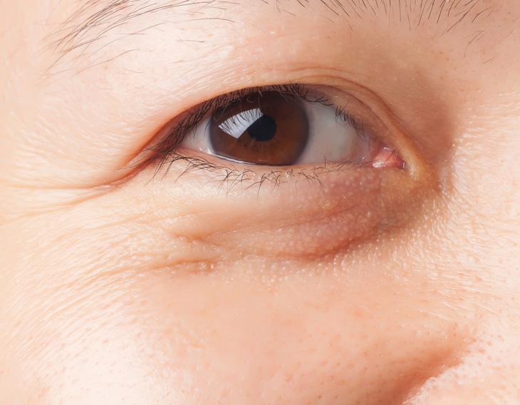 たるみが原因の目の下のシワの画像