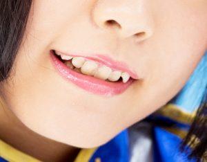 八重歯でほうれい線が気になる女性の画像