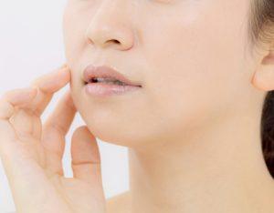 乾燥によるほうれい線に悩む女性の画像