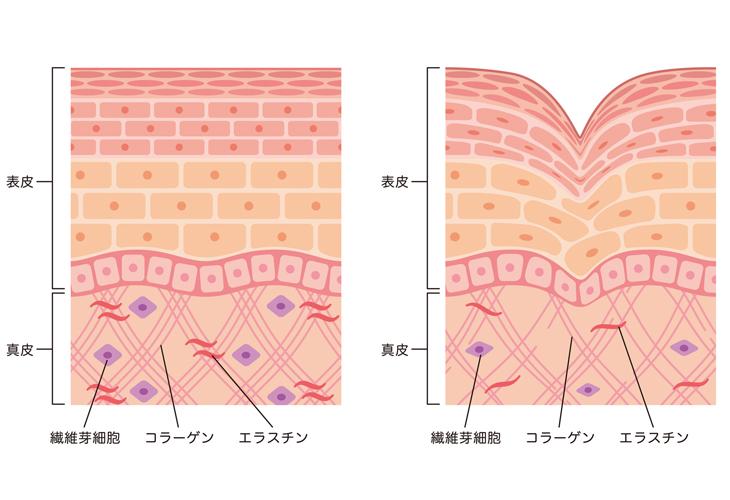 ほうれい線の肌の断面画像