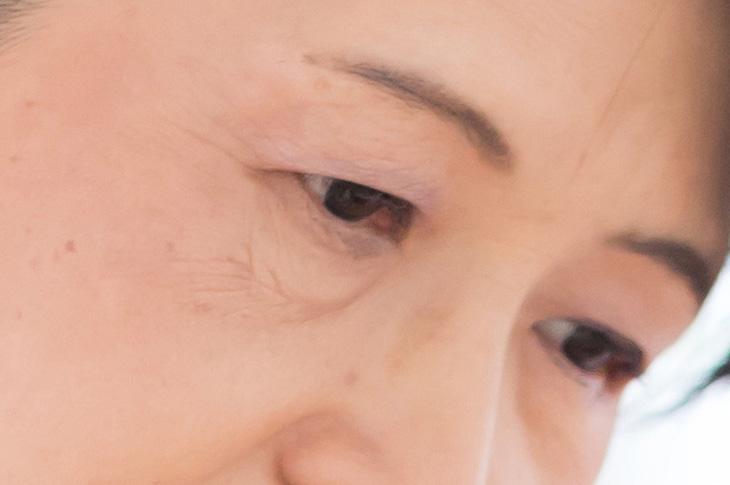 目袋の画像