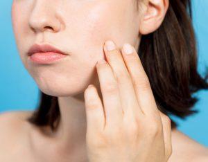 顔のたるみの原因を知りたい女性の画像