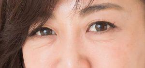 眼窩脂肪ヘルニアの画像