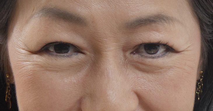 目の下のふくらみに悩む女性の画像