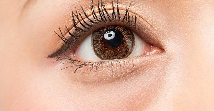 目の下の脂肪に悩む女性の画像