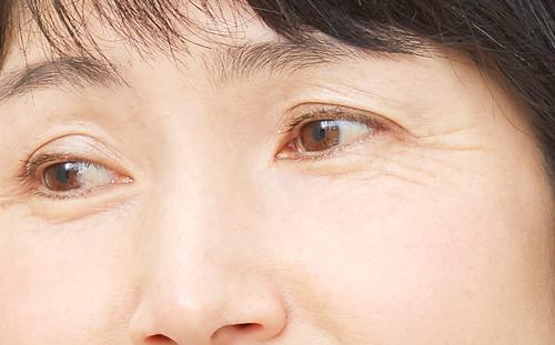 目の下にしわがある女性の画像