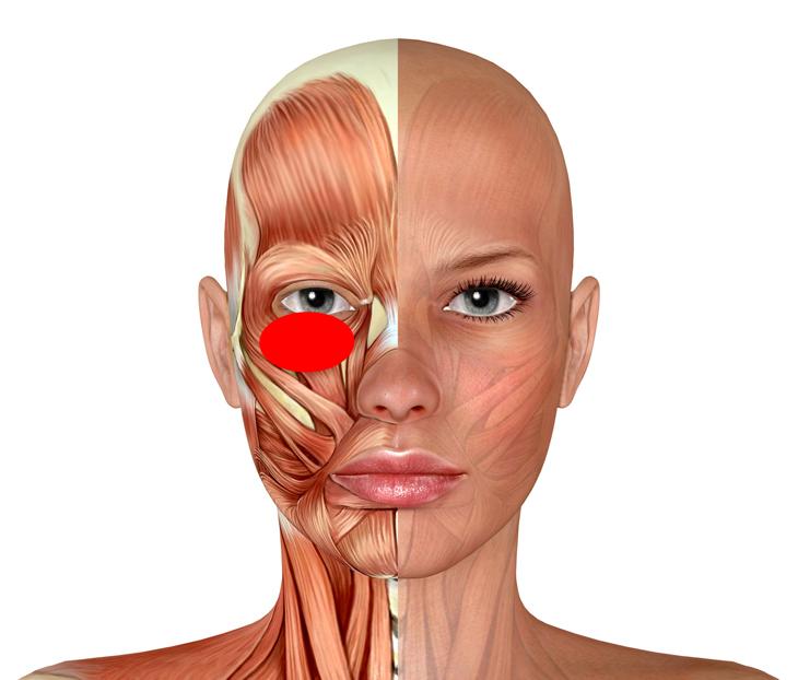 眼窩脂肪を自力で改善する場所の画像