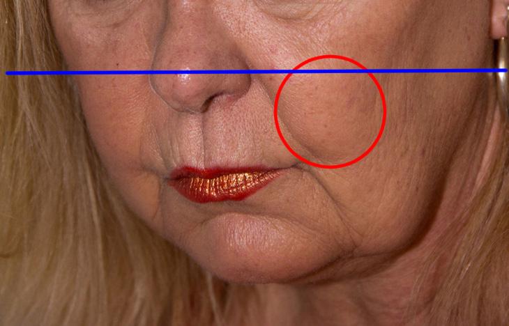 顔のたるみ解消法の解説画像