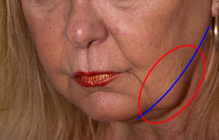 顔のたるみ解消の説明画像