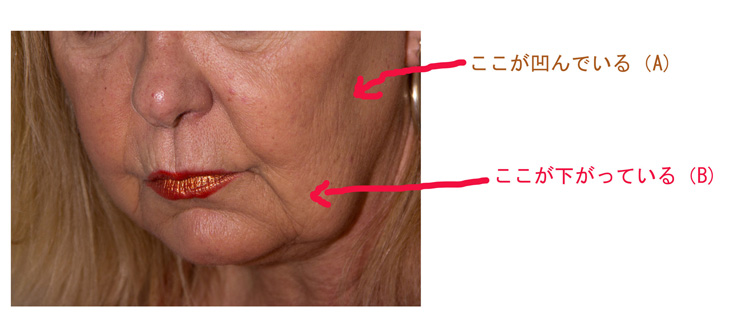 顔のたるみの説明画像