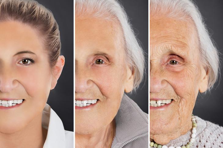 肌の老化のイメージ画像