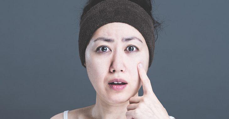 顔のしわとたるみに悩む女性の画像