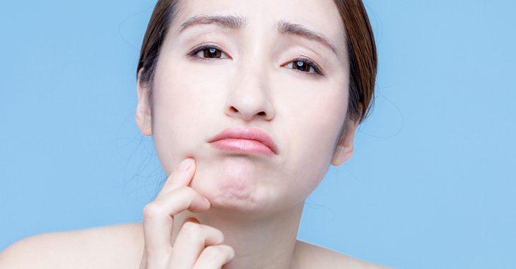 顔の皮のたるみに悩む女性の画像