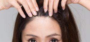 顔のたるみと頭皮が気になる女性の画像