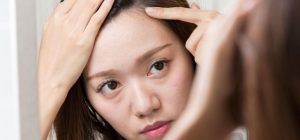 額のしわに悩む女性の画像