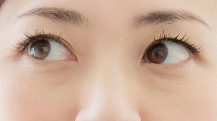 目の下のしわの画像