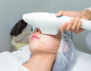 顔のたるみに効くレーザー治療を受けている女性の画像