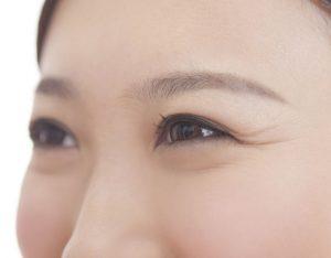 目尻のシワが気になる女性の画像