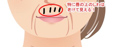 上唇のしわの画像