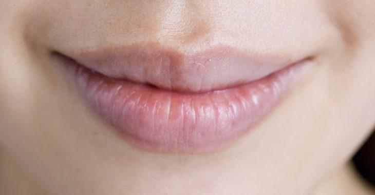 唇のしわの画像