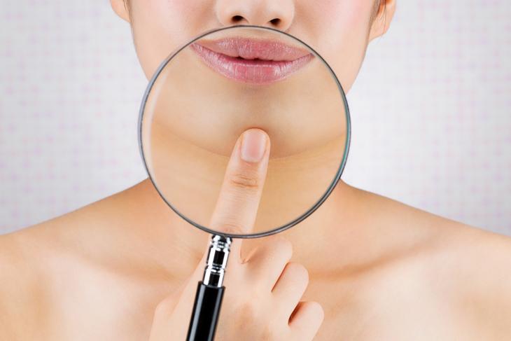 顎のシワが改善した女性の画像