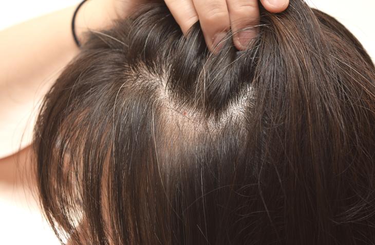 頭皮のたるみがおでこのしわの原因の画像